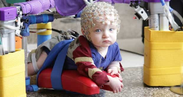 Sipcc Device Helps Babies At Risk Of Cerebral Palsy With